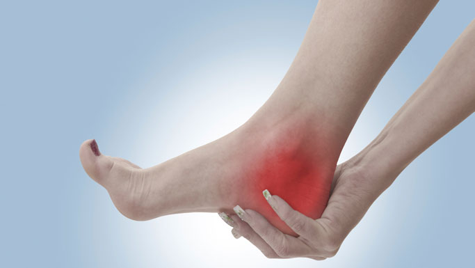 Camas Chiropractic Treatment for Plantar Fasciitis